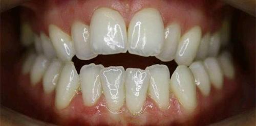 Links Orthodontics | Damon Braces